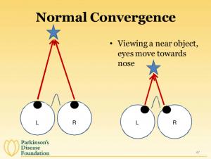 Сходимость глаз у здорового человека